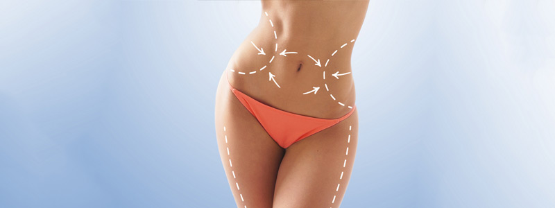 liposuction_dubai