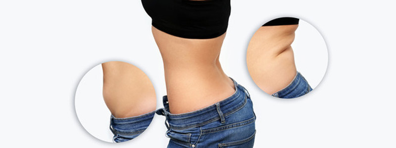 laser-liposuction-in-dubai