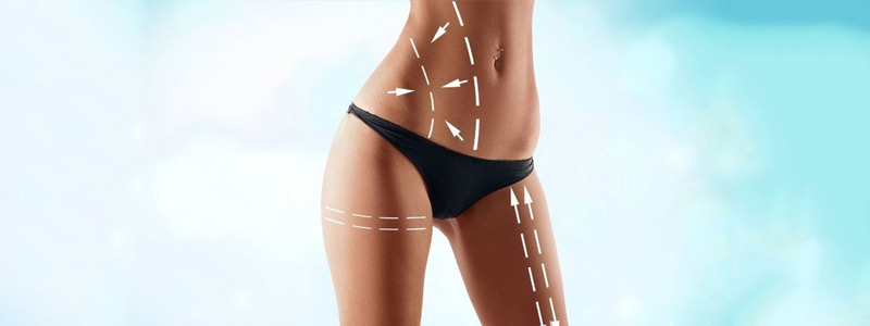 Best type of liposuction for stomach