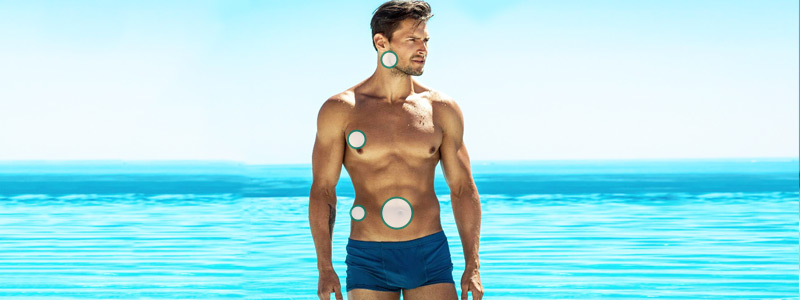 Laser Liposuction Treatment Areas For Men